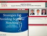Journal of American Academy of Orthopaedic Surgeons (JAAOS) Live Webinar on Scapular Notching after Reverse Shoulder Arthroplasty